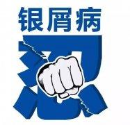武�h皮�w病��(zhuan)家ye) 幔�u疾Σ?zhen)�桶l伴�[屑瘙�W反�筒缓�(hao)到底zi)趺窗ban)?
